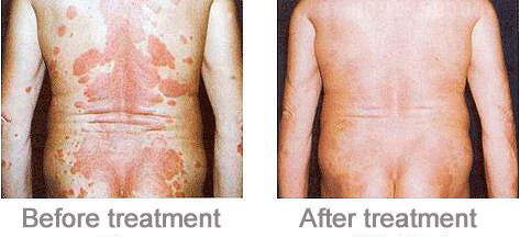 psoriasis uvb therapy