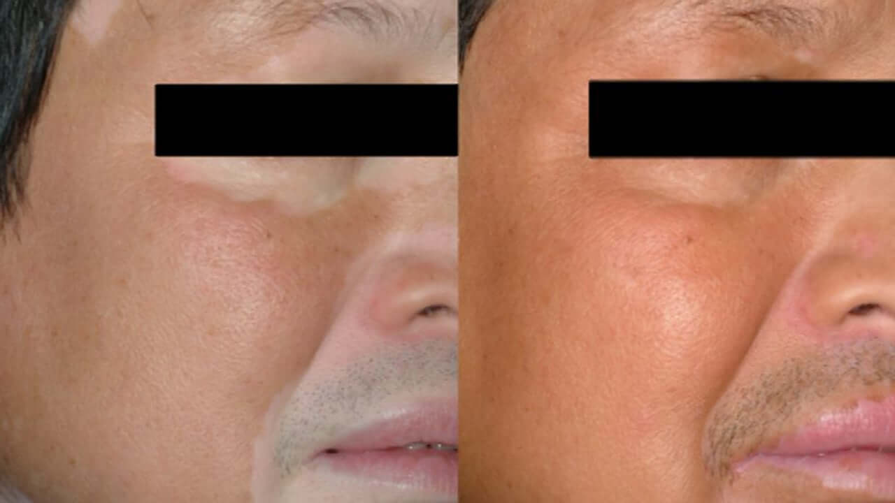 UVB treatment vitiligo