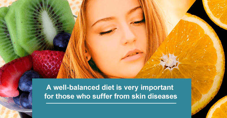 A well-balanced diet is very important for those who suffer from skin diseases